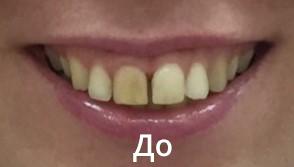 До (Александра, 37 лет.)